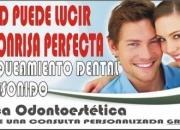 Blanqueamiento Dental (ESTETICA DENTAL)